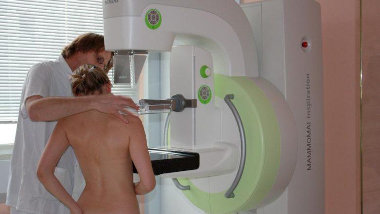Faire une mammographie à Compiègne